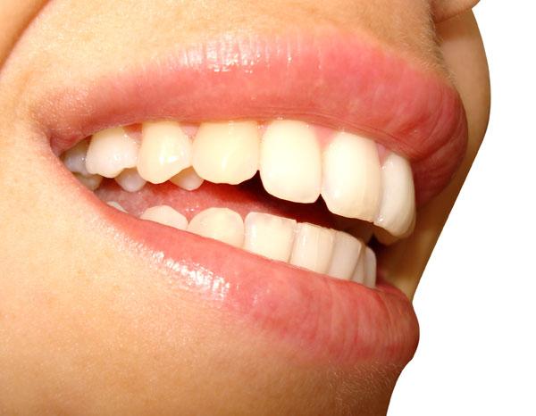 Sorria mais, faz bem à saúde.