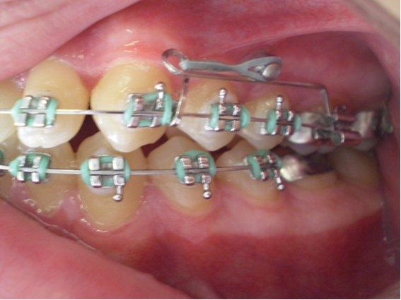 Mini Implante e Ortodontia