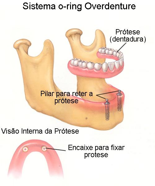 O-ring - overdenture- dentadura