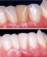 Clareamento Dental Interno Revista Saude Guarapuava