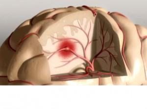 AVC - cerebro
